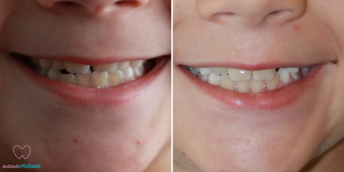 Zgryz przed i po leczeniu, fot. mamaortodonta