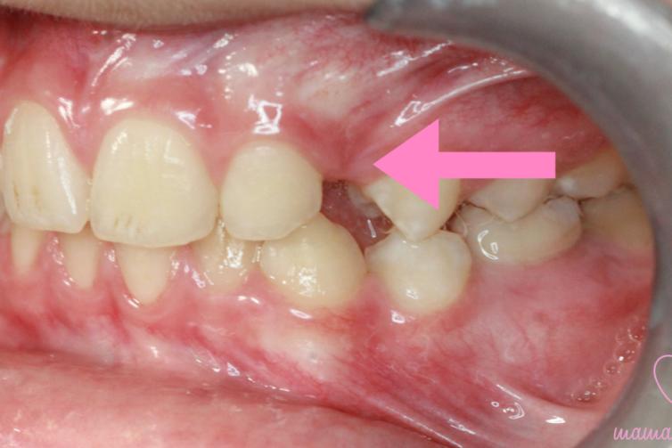 Prawdziwy przypadek - co zrobić, kiedy brakuje miejsca na stały ząb?, fot. mamaortodonta.pl