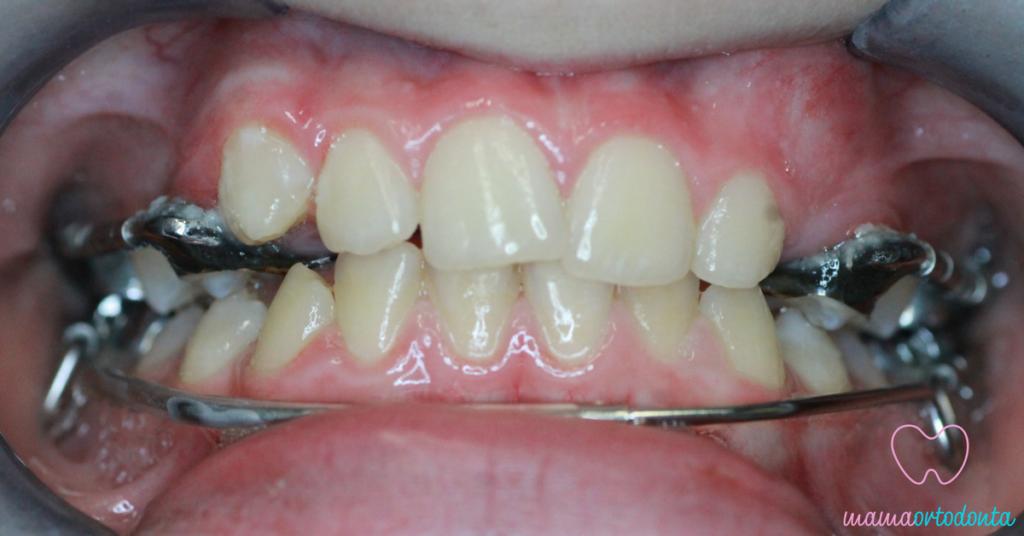 Leczenie pacjenta metodą CAD - aparat GMD i LipBumper