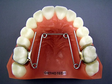 Quadhelix, fot. www.orthotechohio.com