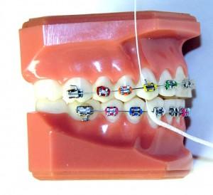 Nić dentystyczna Superfloss