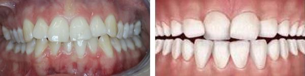 Stłoczenia zębowe