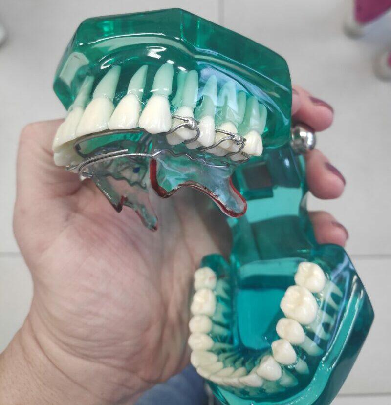 Aparat Bioblok do poszerzania łuków zębowych