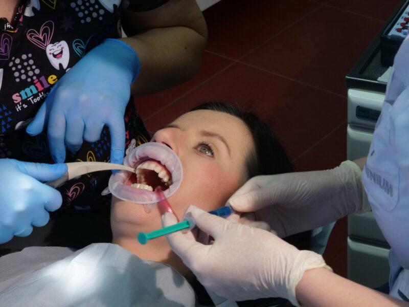 Osuszenie zębów