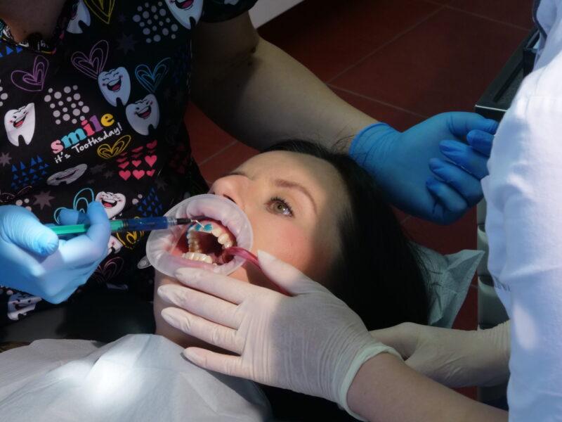 Wytrawienie szkliwa zębów kwasem ortofosforowym