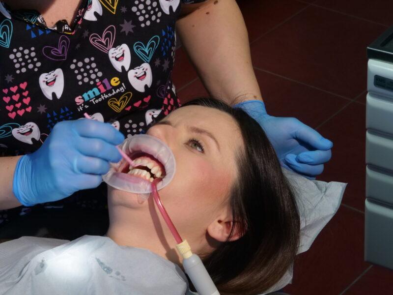 Smarowanie szkliwa systemem wiążącym do kleju ortodontycznego czyli bondem