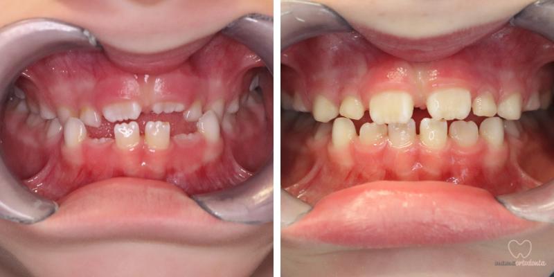 """Kolejny """"mały"""" pacjent, gdzie stosowalibyśmy Bioblok i maskę Hickama. Po wielu latach nieskutecznego leczenie w innym gabinecie, nam w krótkim czasie udało się poszerzyć szczękę, """"przerzucić"""" górne zęby i poprawić rysy twarzy."""
