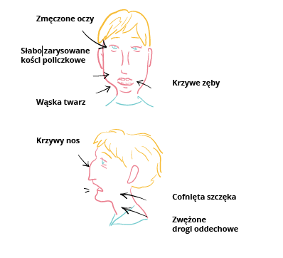 Wpływ oddychania przez usta na rozwój twarzy